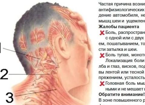 Почему постоянно болит затылочная часть головы