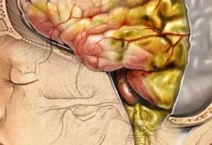 Причины, почему болит сильно голова и тошнит