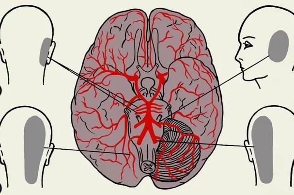 Болит голова сзади слева