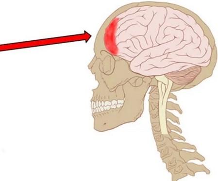 Болит лобная часть головы: причины и лечение