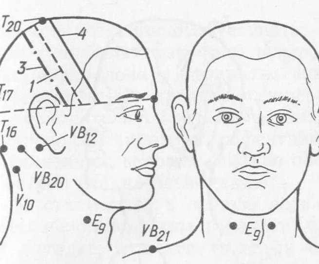 Болит голова и давит на глаза изнутри