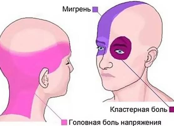 Что делать при сильной головной боли