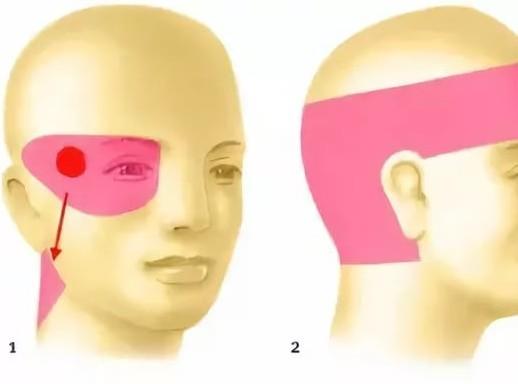 Причины почему болят глаза и голова