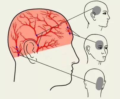 Боли в затылке головы и шеи причины