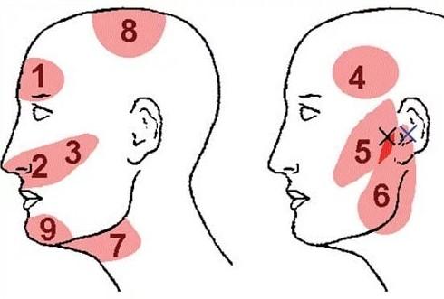 Что делать если болит голова в области висков - Почему болят и давит на виски