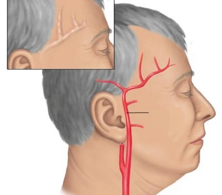Болит голова у левого виска и глаз thumbnail
