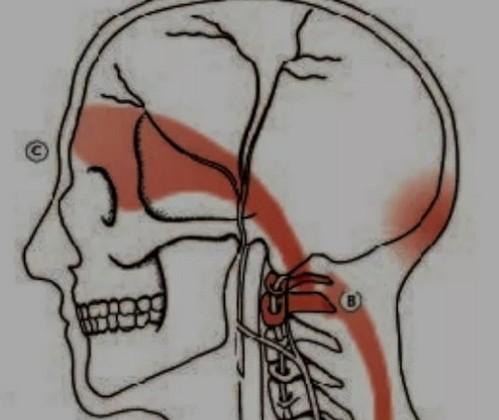 Болит голова с правой стороны у виска