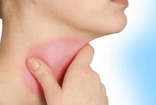 Болит горло и затылок без температуры