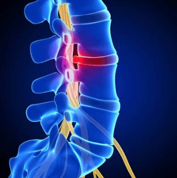 Болят мышцы шеи спереди возле гортани остеохондроз