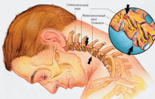 Что делать, если болит шея при повороте головы