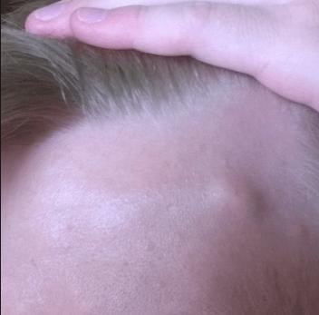 Болит шишка на лбу