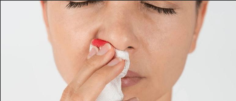 Головная боль и кровь из носа