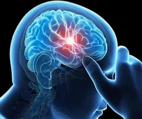 Мигрень симптомы и лечение в домашних